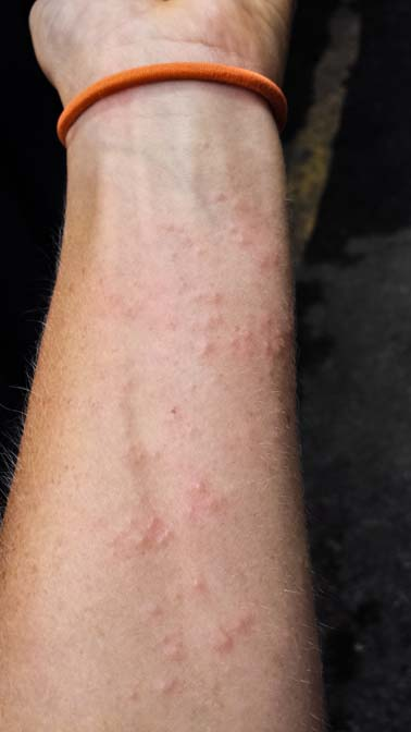Heat rash on my forearm